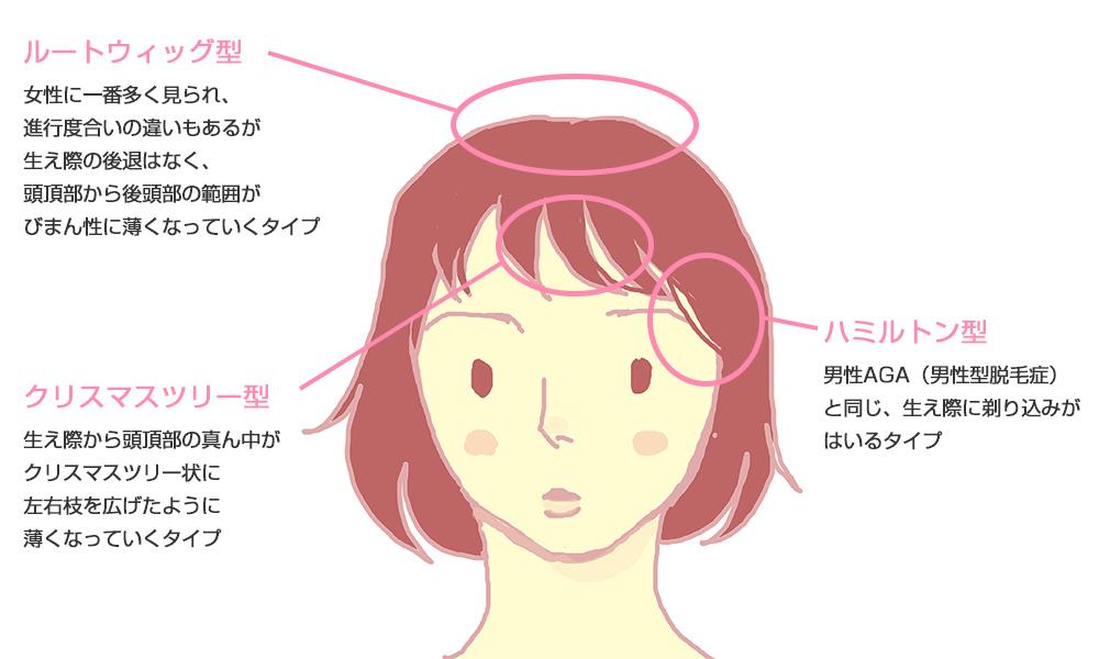 女性の脱毛症の症状