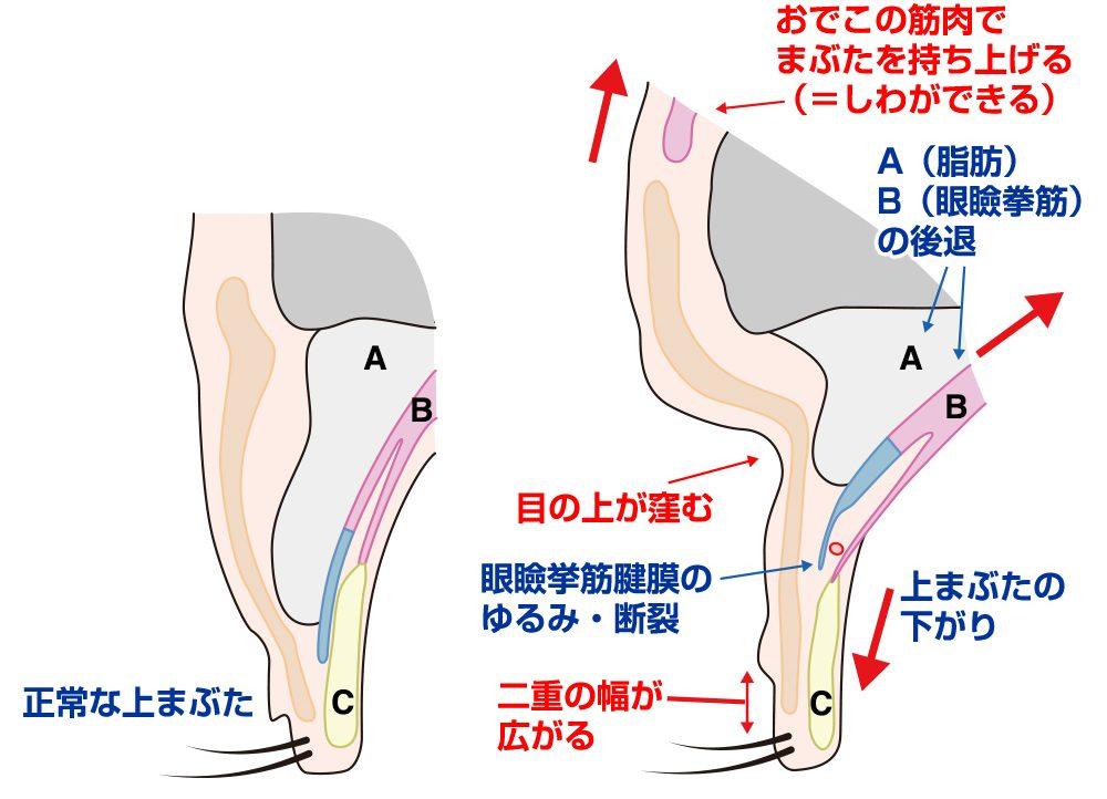 眼瞼下垂の治療法イラスト