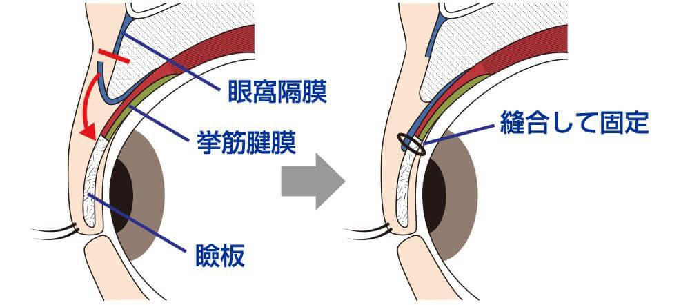 眼瞼挙筋腱膜前転術イラスト