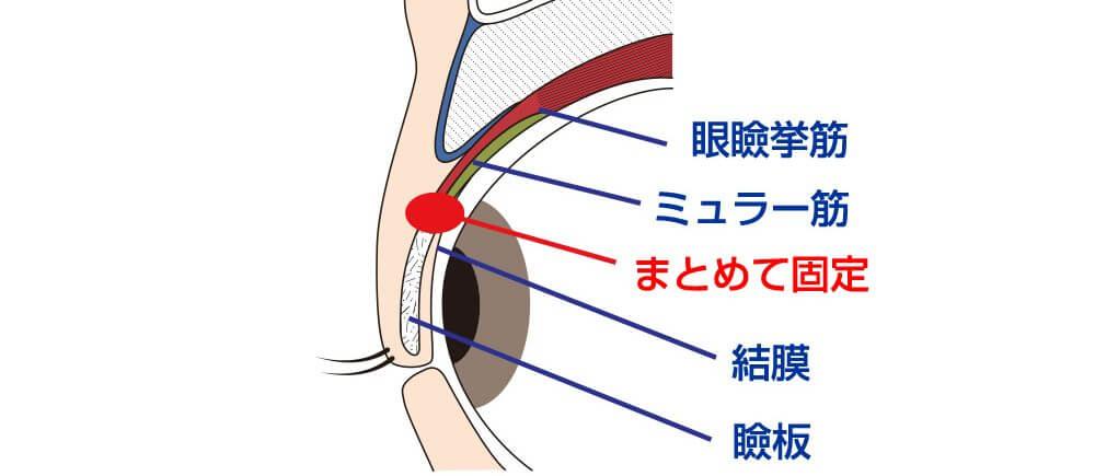 眼瞼挙筋短縮術イラスト