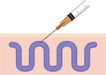 治療法6 硬化療法は注射による治療法です