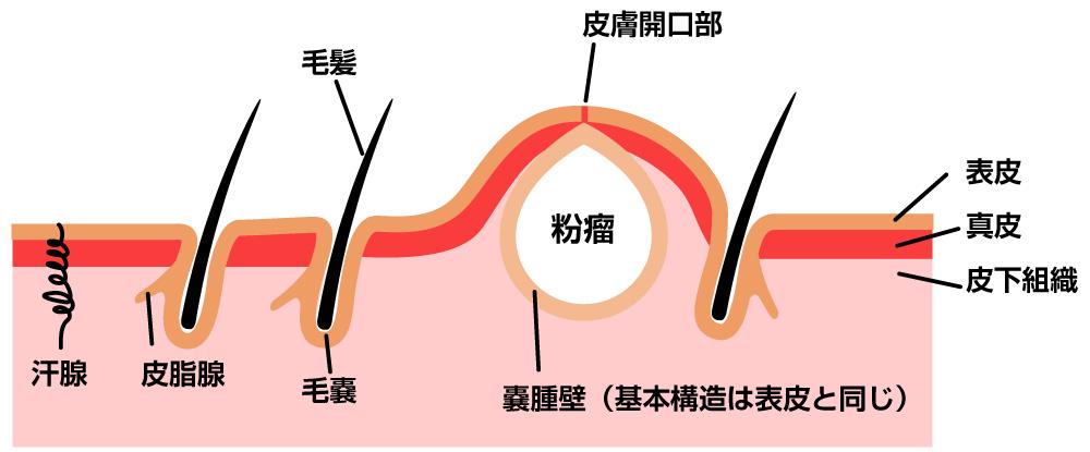 粉 瘤 手術 保険